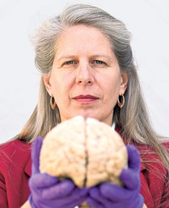 Jill Bolte Taylor showing how the brain is divided